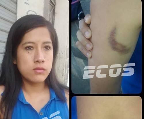 Ladrones arrastran a madre e hija de 4 años por robarle su cartera en Huacho.