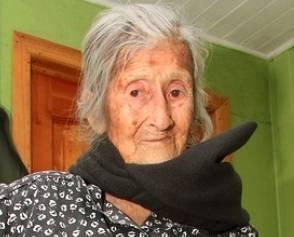Chile Una mujer de 92 años lleva un feto en su vientre durante más de 60 años Huaralenlinea.com